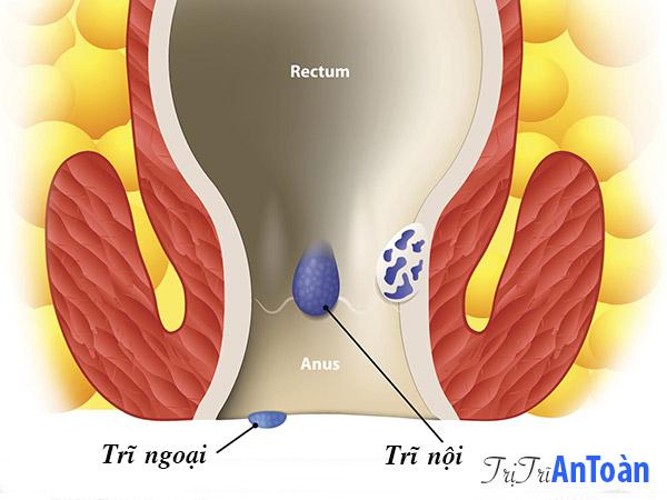 dấu hiệu bệnh trĩ nội trĩ ngoại