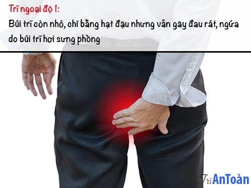 bệnh trĩ ngoại độ 1
