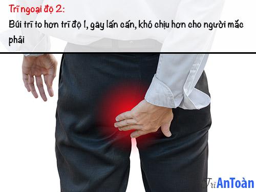 bệnh trĩ ngoại độ 2