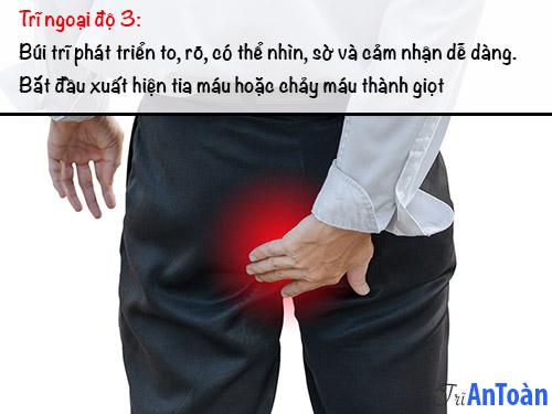 bệnh trĩ ngoại độ 3
